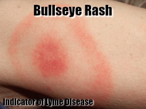 Bullseye Rash for Lyme Disease